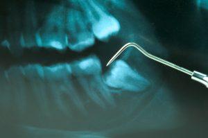 digital dental xray