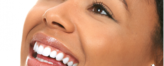 teeth whitening la mesa